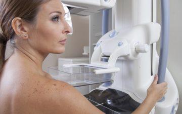 Mamografia é a forma mais eficaz para checar mudanças na mama