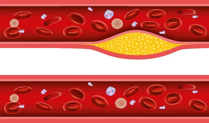 Imagem de artérias do corpo humano damasco