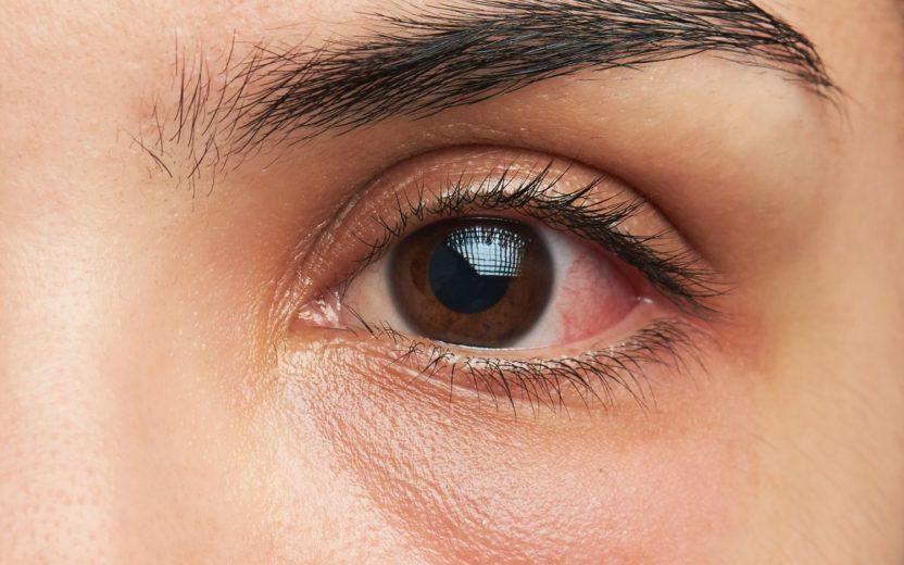 olho seco