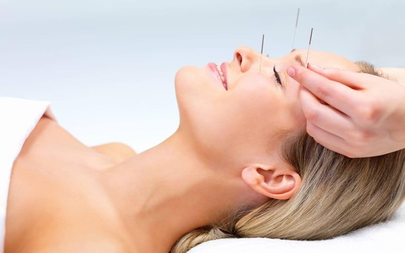acupuntura para estética