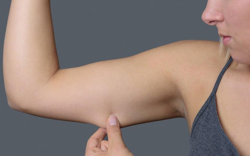 Treinar braço traz vantagens às mulheres; veja 9 razões para começar