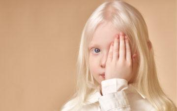 Albinismo: entenda o que é essa anomalia pigmentar